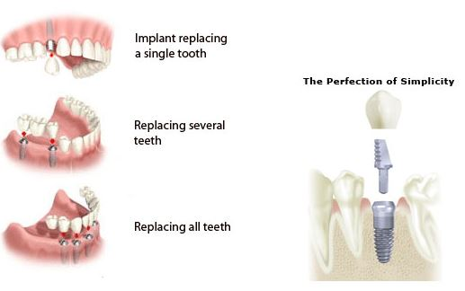 dental implants glasgow patients picture