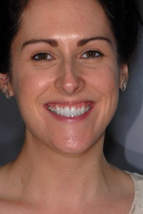 Pollokshaws Glasgow client after Invisalign