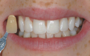 Mount Florida Glasgow patient after dental braces treatment