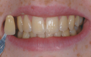 Mount Florida Glasgow client before dental braces