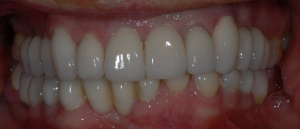 Haghill Glasgow patient after dental implants treatment