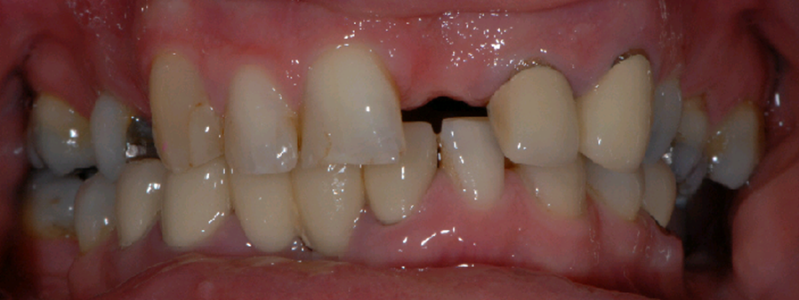 Haghill Glasgow dental patient before implants
