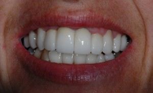 Baillieston Glasgow client after teeth whitening