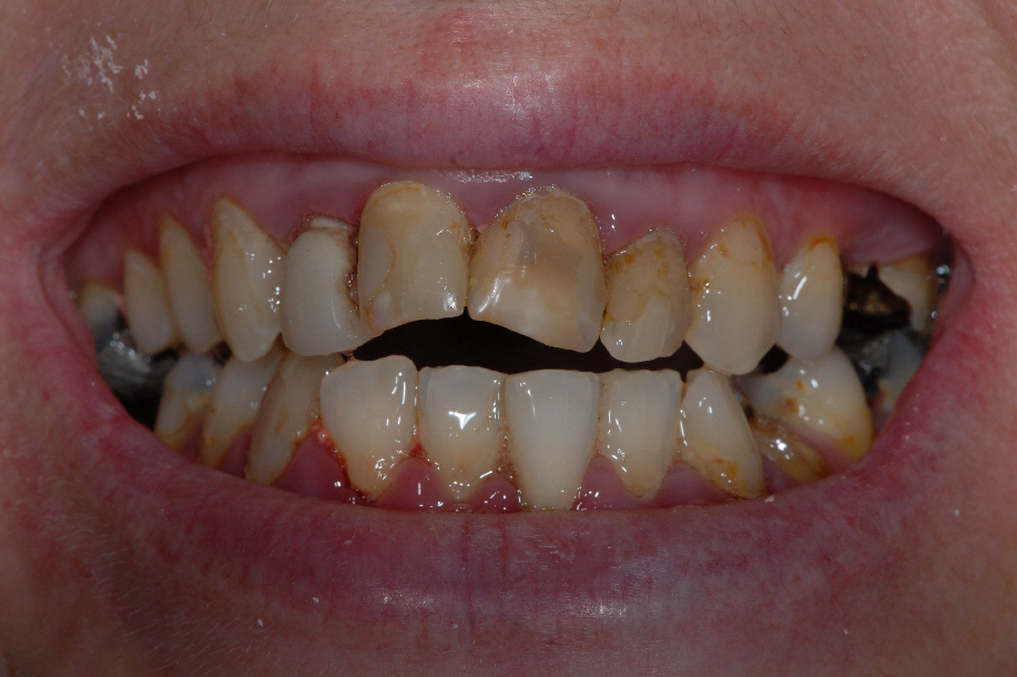 Baillieston Glasgow client before teeth whitening