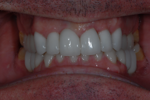 Anderston Glasgow client after tooth implants
