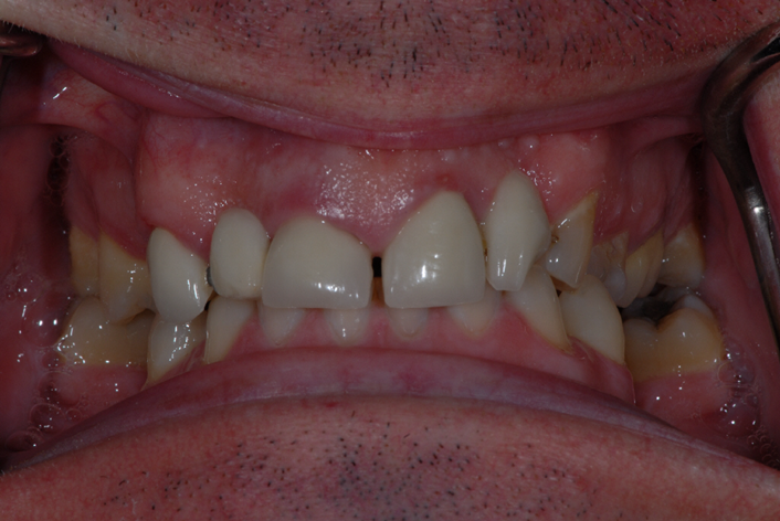 Anderston Glasgow client before tooth implants