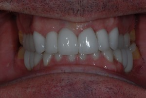 Kelvinside Glasgow patient after treatment