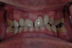 Kelvinside Glasgow patient before veneers treatment