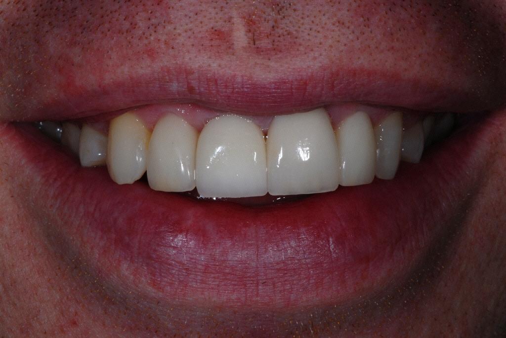 Govan Glasgow orthodontics patient after treatment