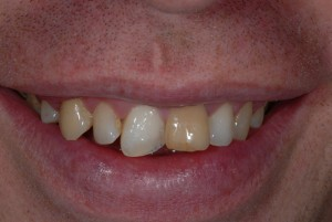Govan Glasgow orthodontics patient before