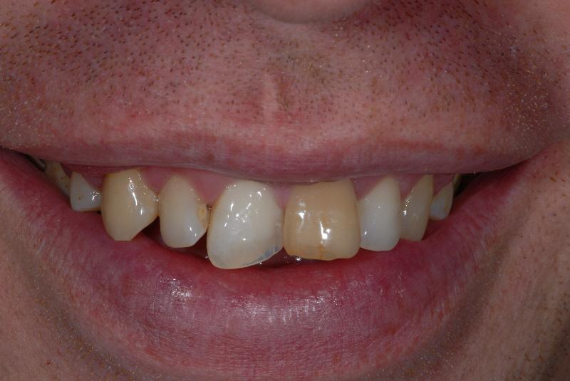 Govan Glasgow orthodontics patient before