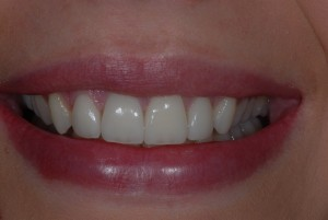 Ibrox Glasgow dental patient after treatment