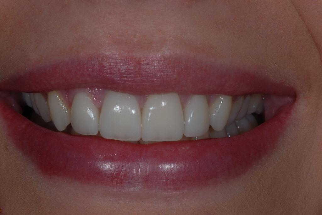Ibrox Glasgow dental patient after treatment