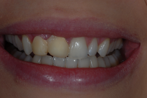Ibrox Glasgow dental patient prior to treatment