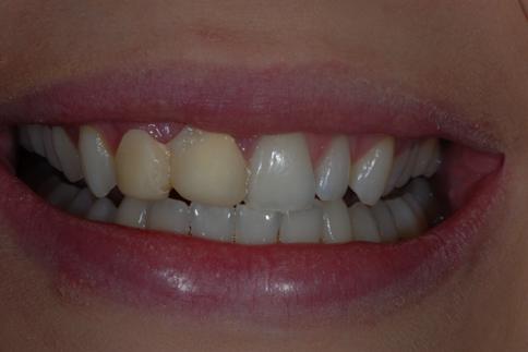 Ibrox Glasgow dental patient prior to treatment
