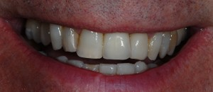 Newton Mearns Glasgow client after dental implants treatment