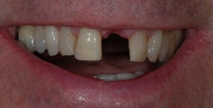 Newton Mearns Glasgow client before dental implants