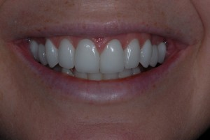 Milton Glasgow patient after dental work