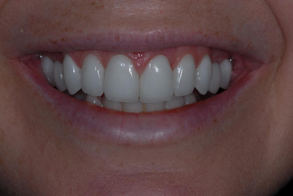 Milton Glasgow patient after dental work