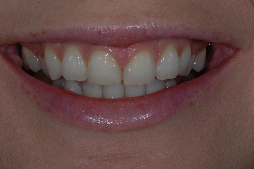 Milton Glasgow dental patient before treatment