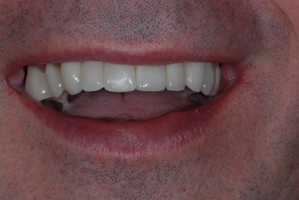 Partick Glasgow patient after teeth implants treatment