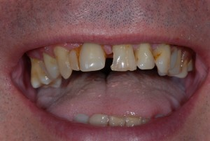 Partick Glasgow patient before teeth implants