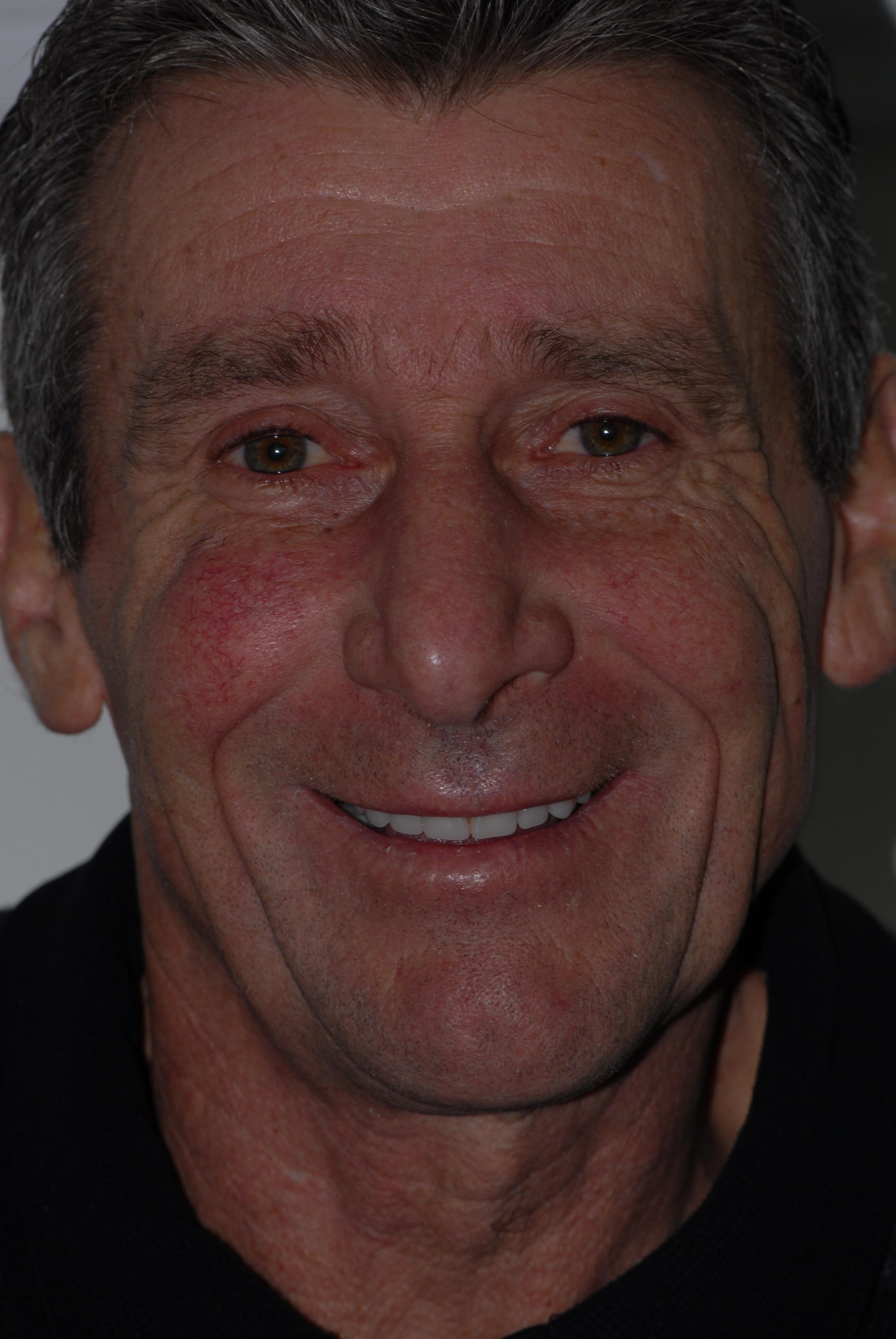 Scotstoun patient after dental implants