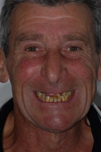 Scotstoun patient before dental implants