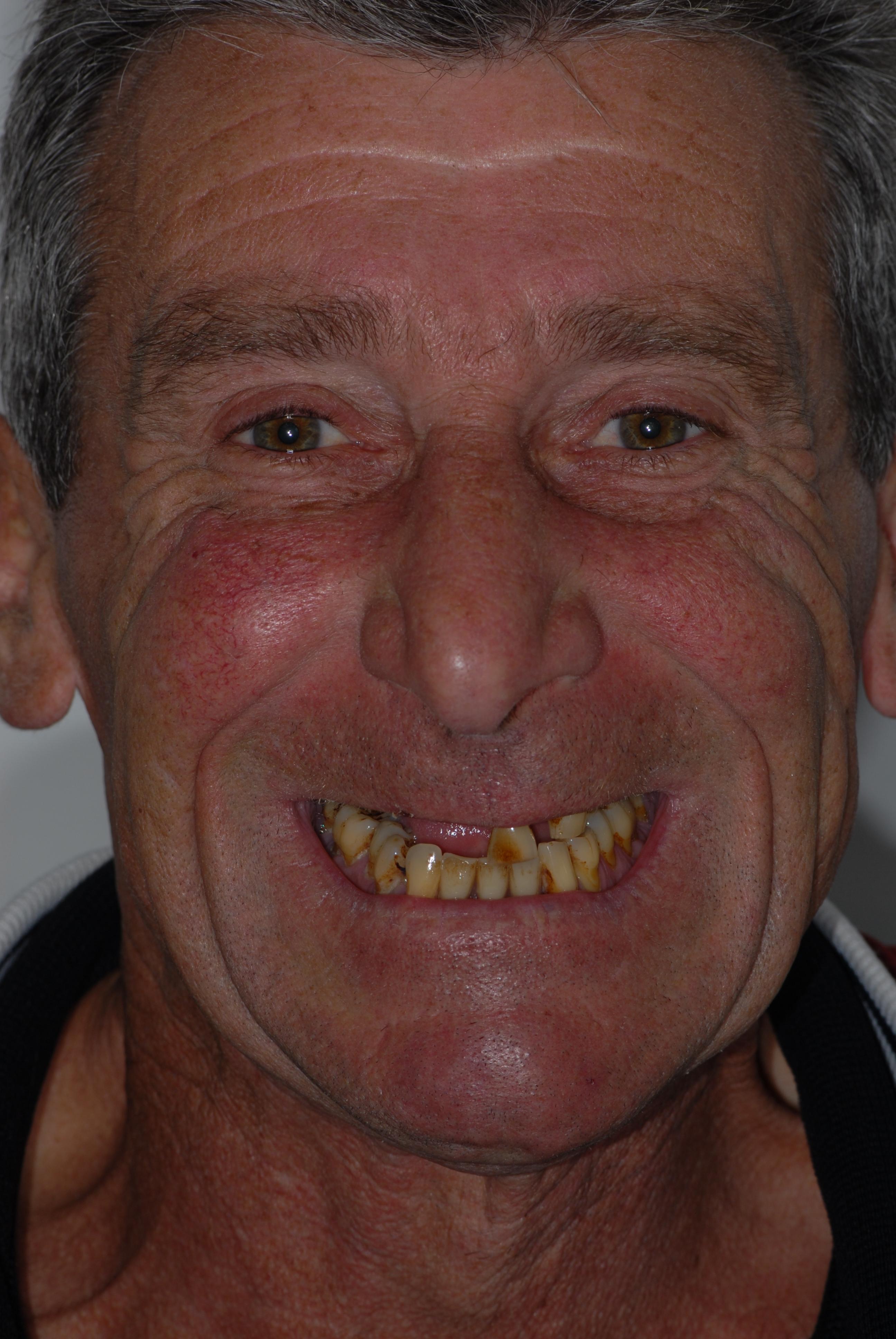 Scotstoun patient before dental implants