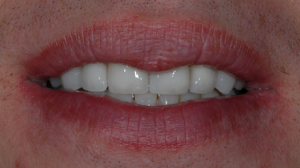 anniesland patient after veneers treatment