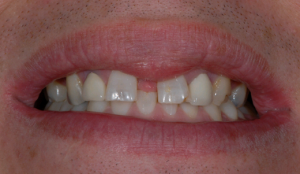 anniesland dental patient before veneers
