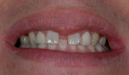 anniesland dental patient before veneers