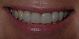 porcelain veneers glasgow patient after treatment