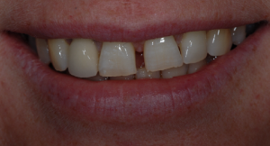 porcelain veneers glasgow patient before treatment