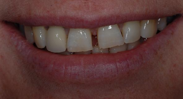 porcelain veneers glasgow patient before treatment