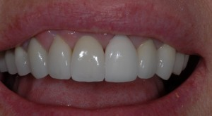 veneers Glasgow patient after treatment