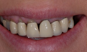 dental veneers glasgow patient before treatment