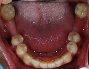 Millerston Glasgow client before dental implants