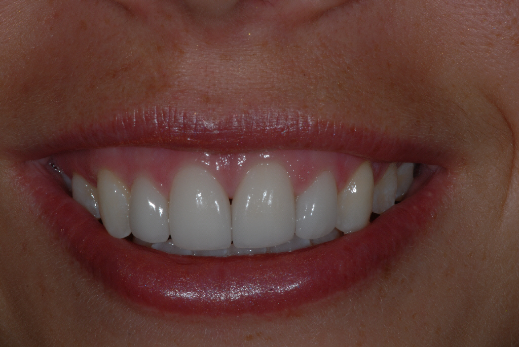 Knightswood Glasgow client after smile makeover
