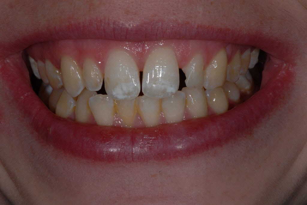 Knightswood Glasgow client before smile makeover