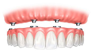 denture implants glasgow