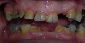 glasgow dental implants closeup before treatment